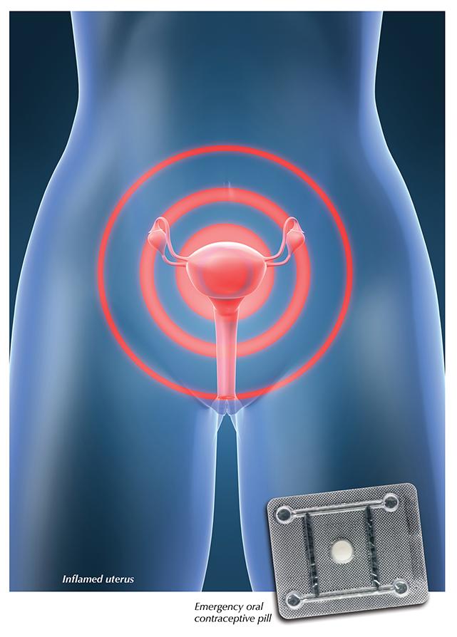 ginekologiya-vaginalnie-videleniya