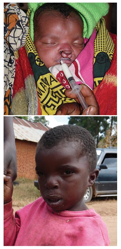 OCT2014DrWillpic1-Bahati
